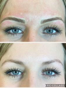 microblading-before-after-2018-03-A