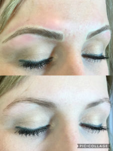 microblading-before-after-2018-03-B