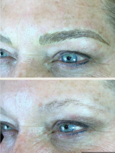microblading-before-after-2018-03-C